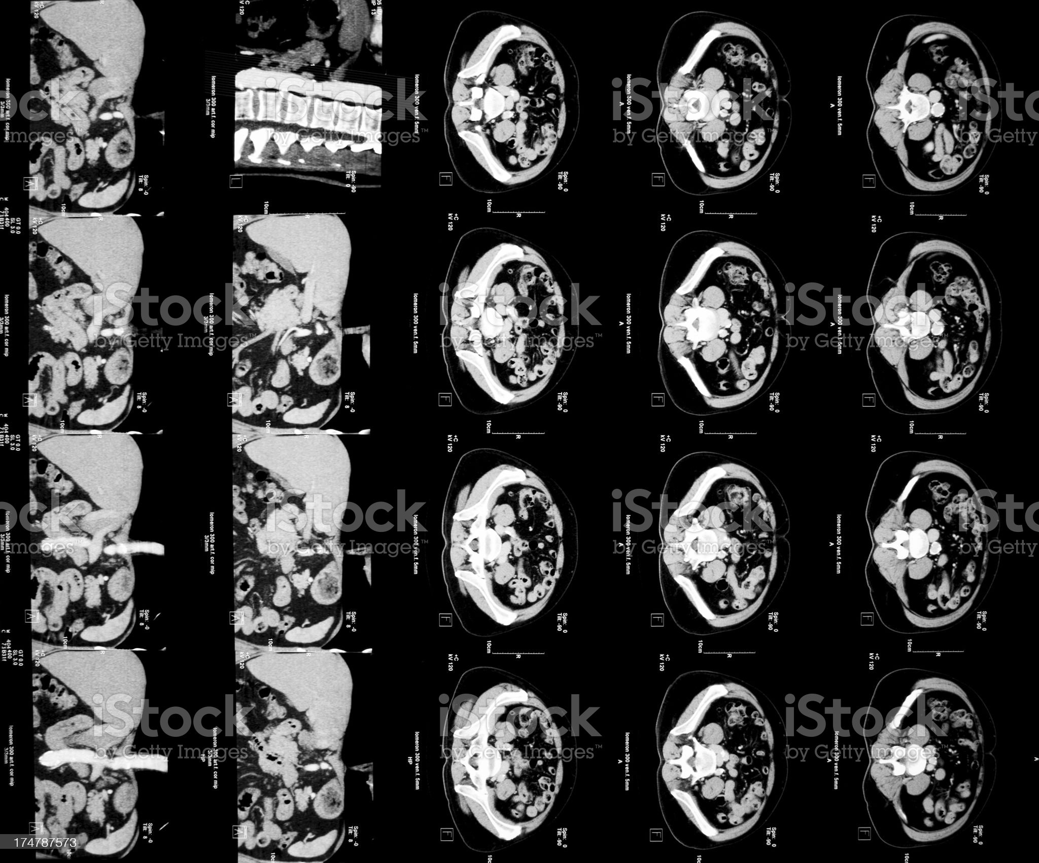 CAT scan picture of human abdomen royalty-free stock photo
