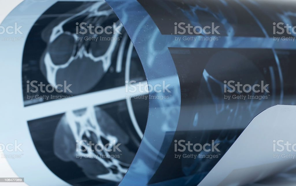 CAT Scan roll close-up stock photo
