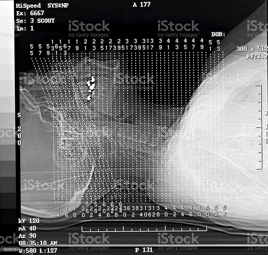 CT Scan Scout royalty-free stock photo