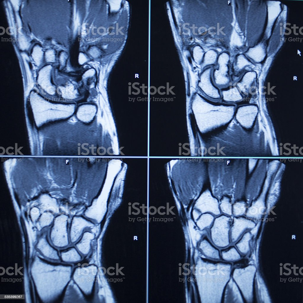 MRI scan test results wrist hand injury stock photo