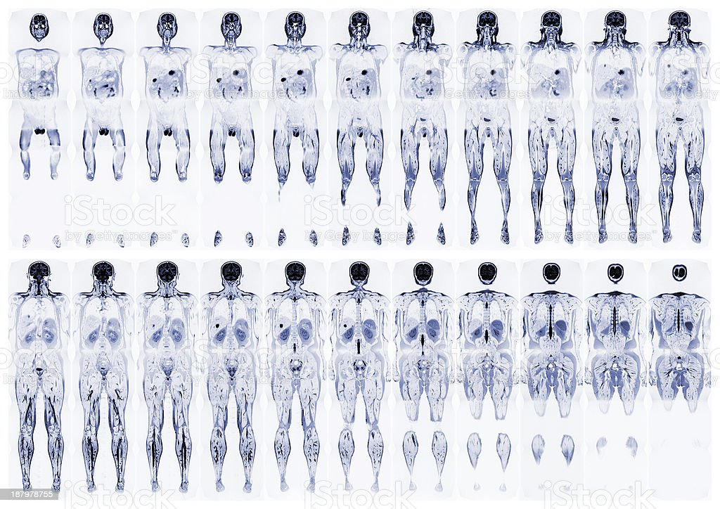 Scan the human body stock photo