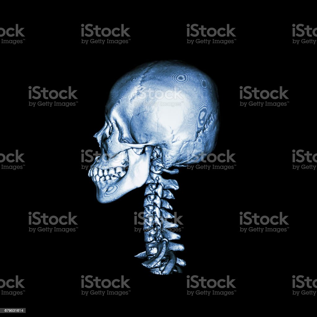 CT scan with 3D image of normal human skull and cervical spine . lateral view . stock photo
