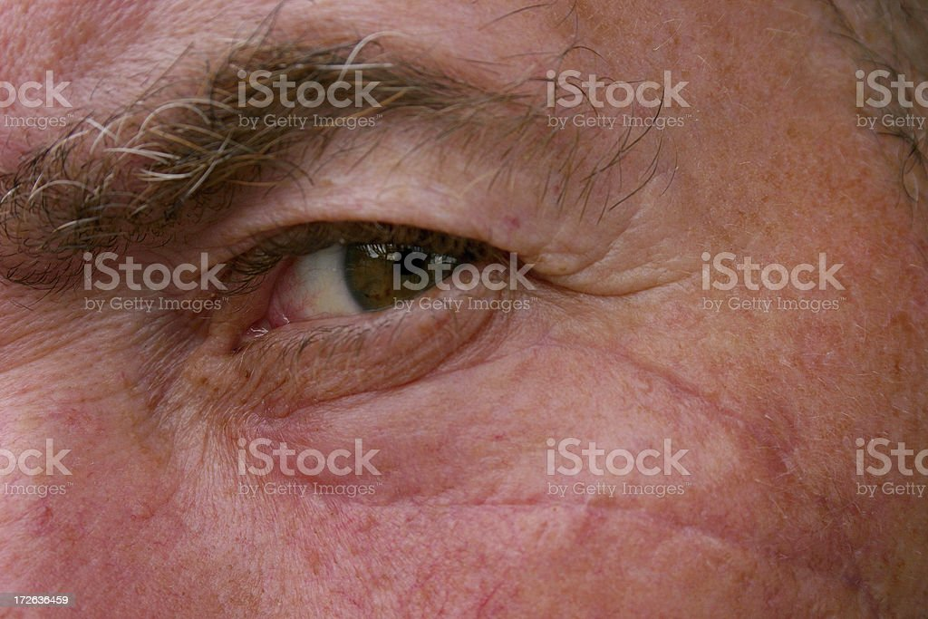 scar after suture removal royalty-free stock photo