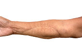 Scar On Arm after operation isolated on white background