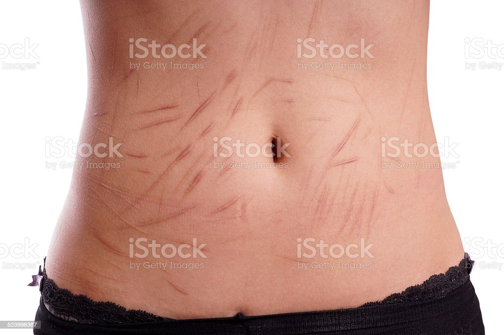 scars from deliberate self-harm stock photo