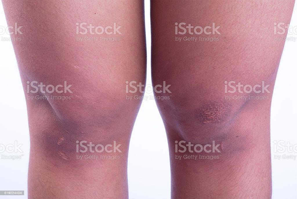 scars stock photo