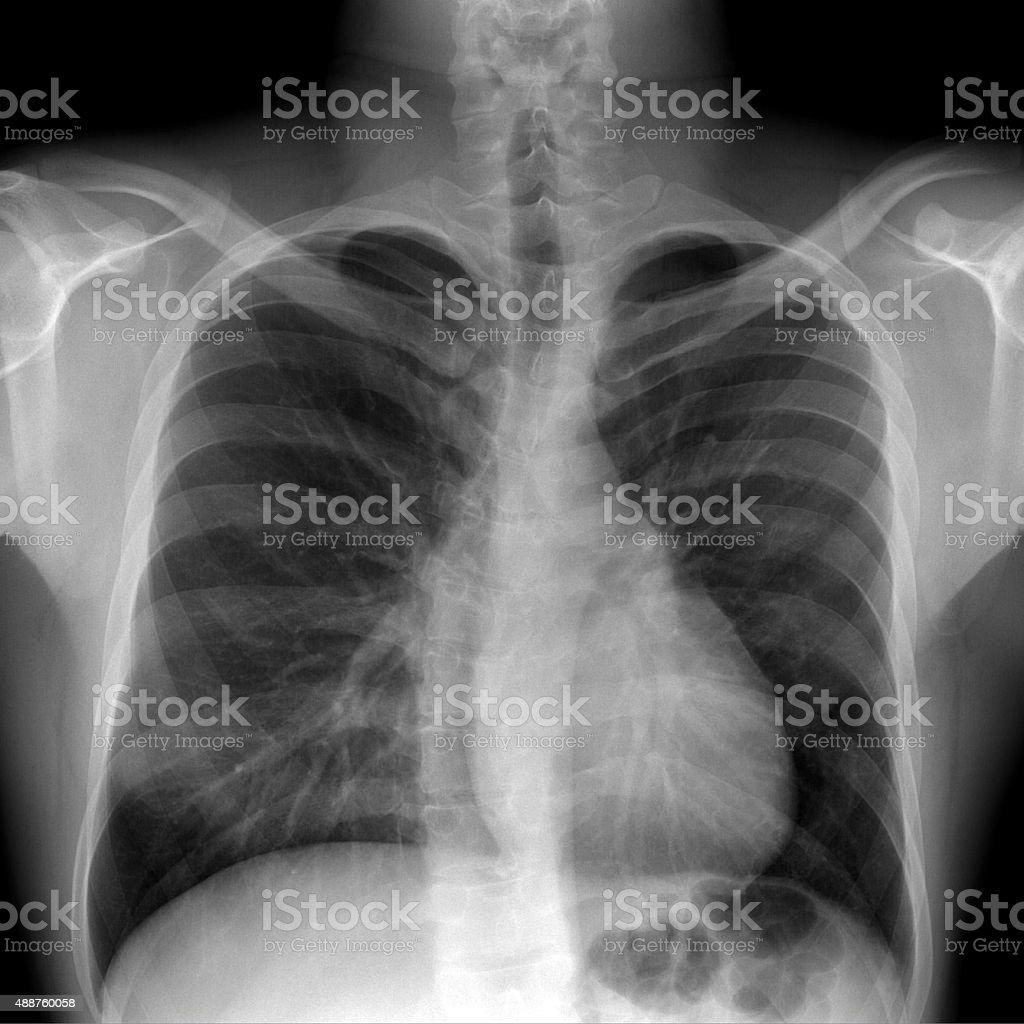 Scoliosis stock photo