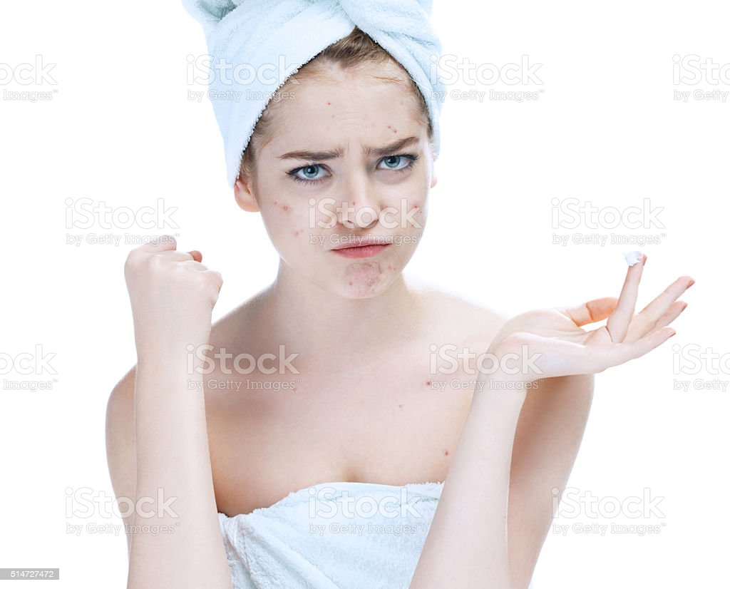 Scowling girl in shock of her acne stock photo