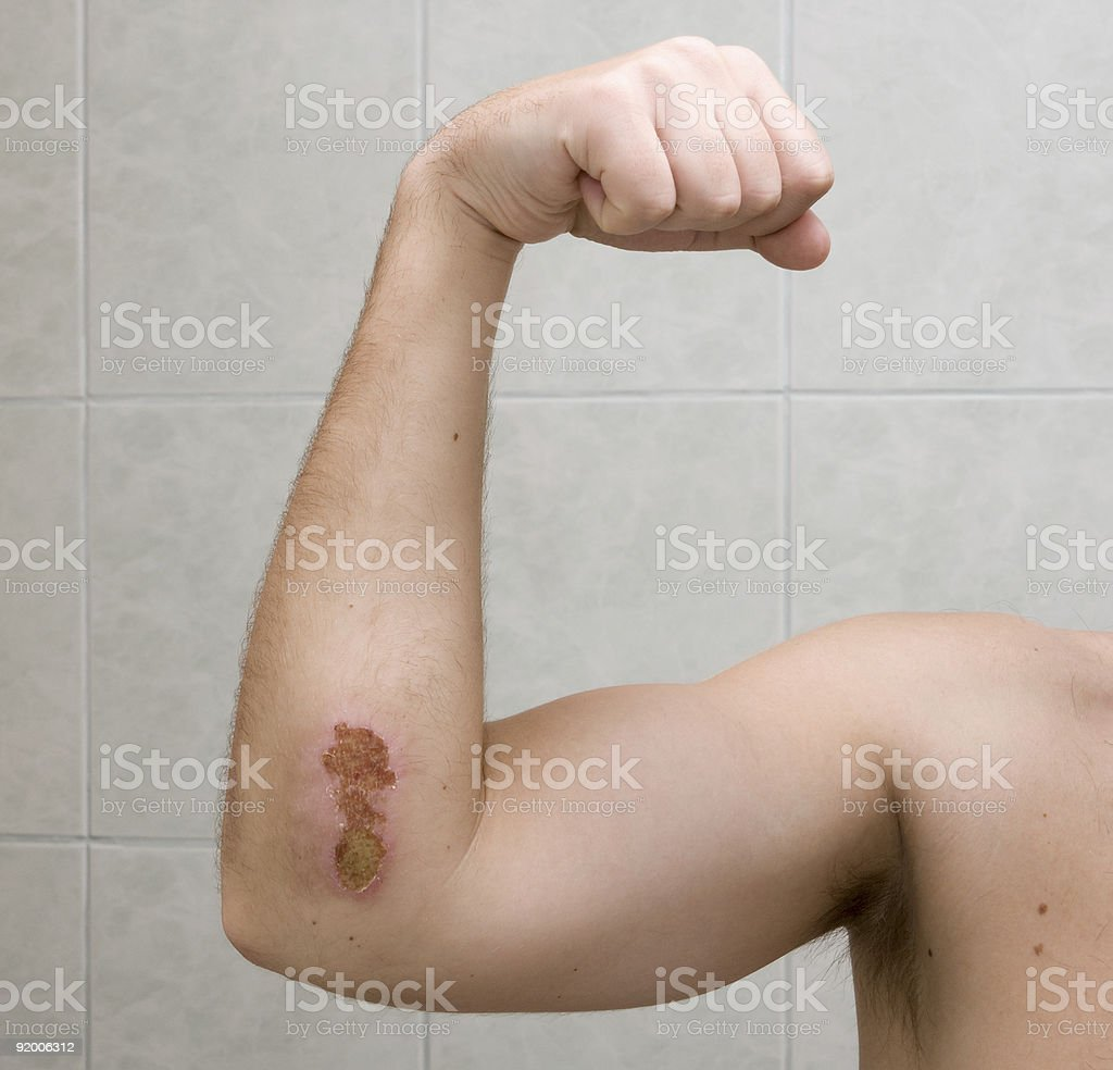 Scraped elbow #3 - 9 days after accident. royalty-free stock photo
