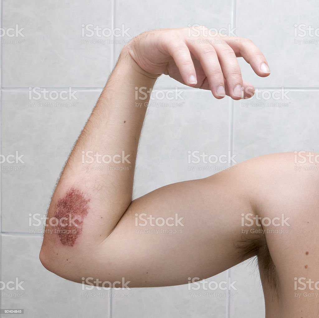 Scraped elbow two days after accident. stock photo