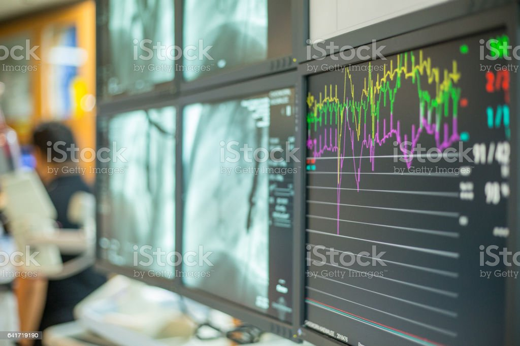Screen Monitoring patient Heart rate in operating room stock photo