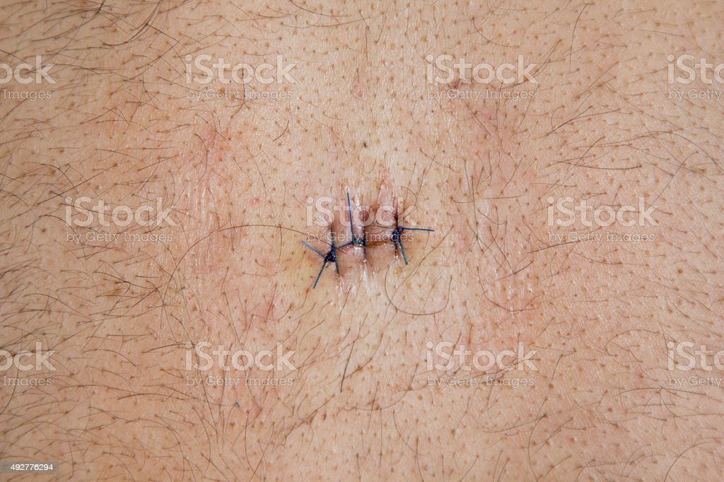 sebaceous cyst operated stitch on the back of the male stock photo