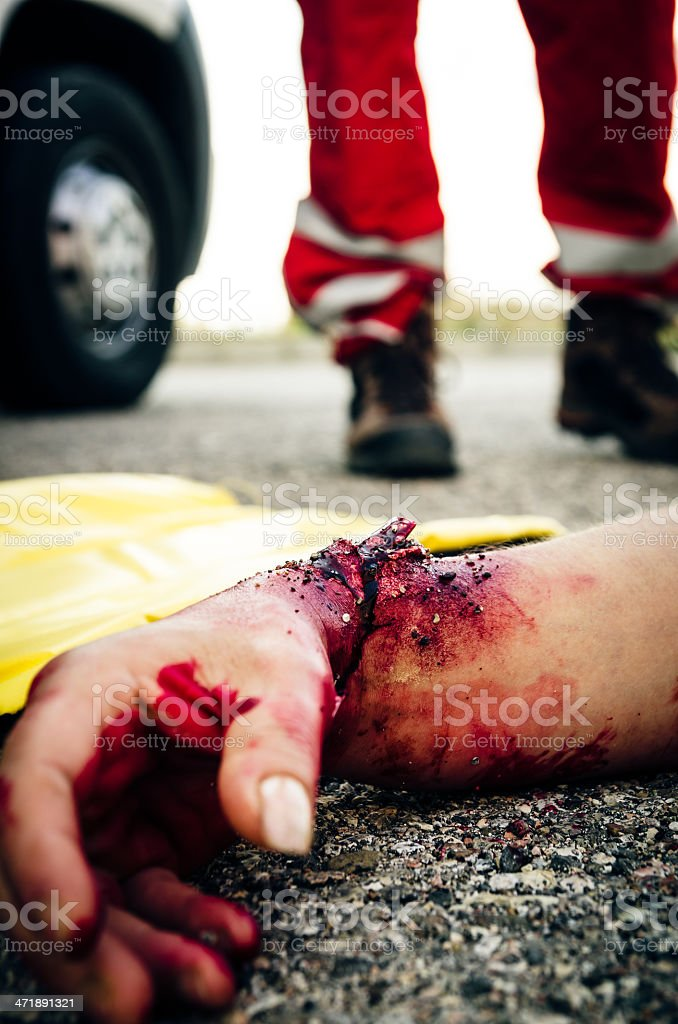 Selective focus on one human hand after car accident royalty-free stock photo