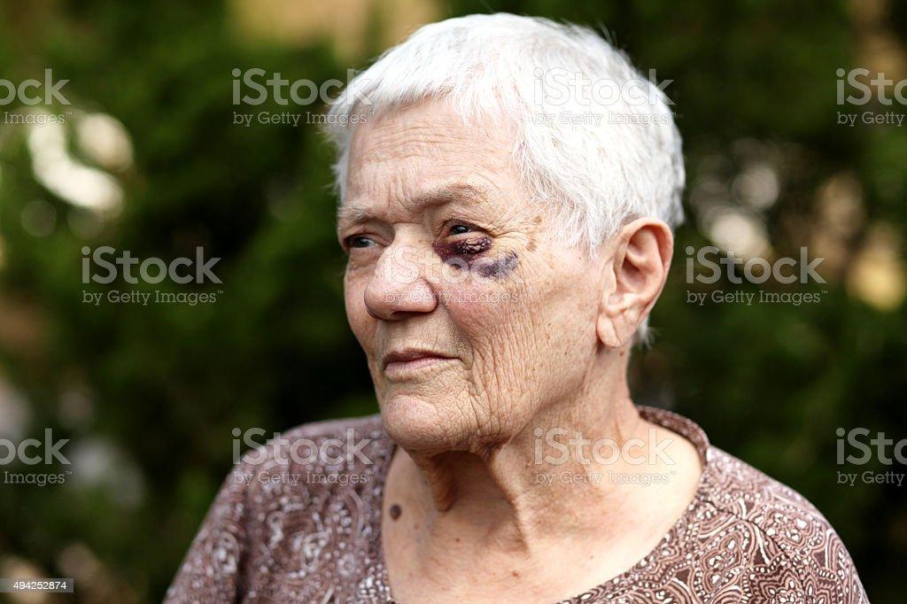 Senior Black Eye from falling stock photo