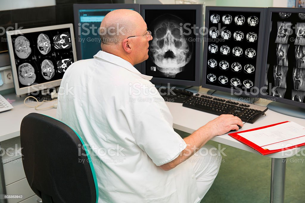 Senior radiologist of Oncology institute is examing MRI scans stock photo