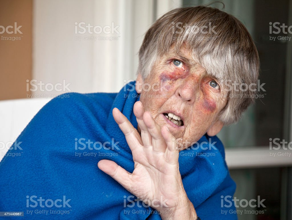 Senior with bruises begging for mercy stock photo