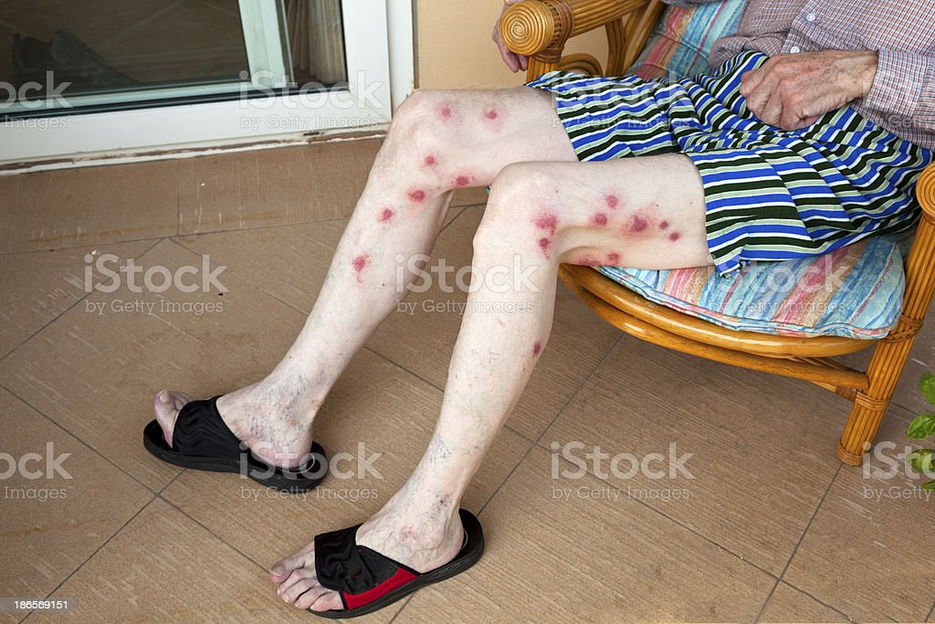 senior with severe allergic reaction to mosquito bite stock photo, Skeleton