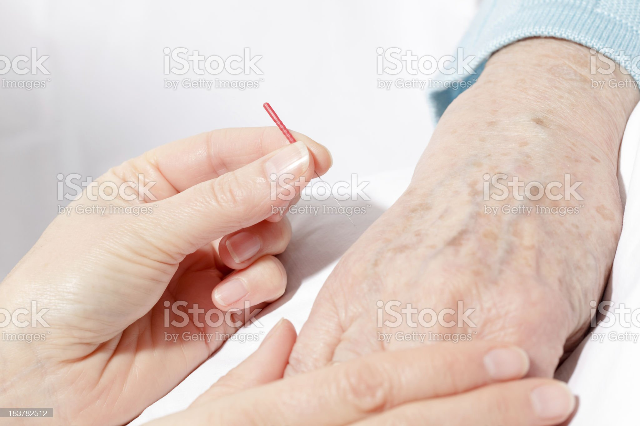 Senior woman getting acupuncture therapy royalty-free stock photo