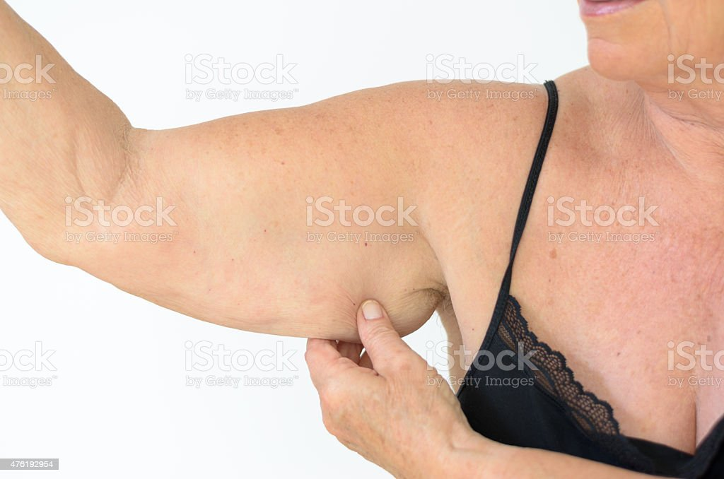 Senior woman showing flabby arm, effect of aging stock photo