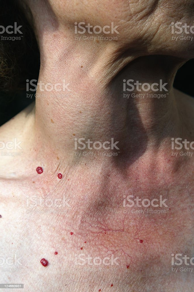Senior woman with Tumor growth. Color image stock photo