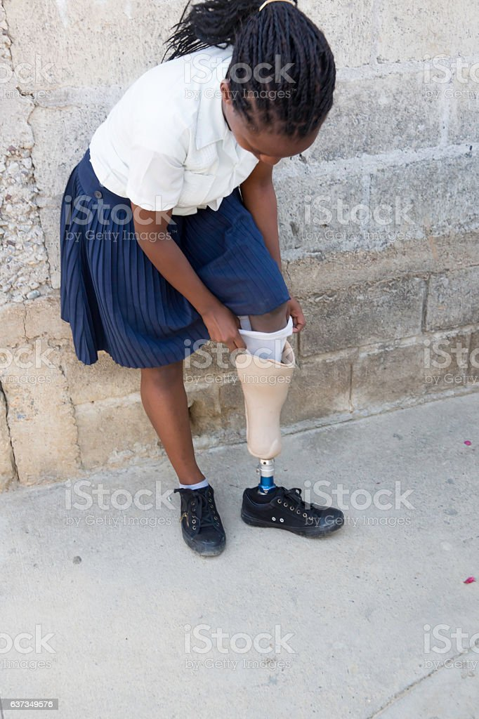 Series Medical:Honduran high school girl putting on prosthetic limb stock photo