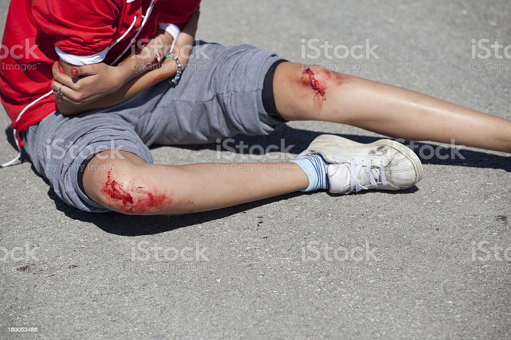 Serious injuries on girl's legs and arm royalty-free stock photo