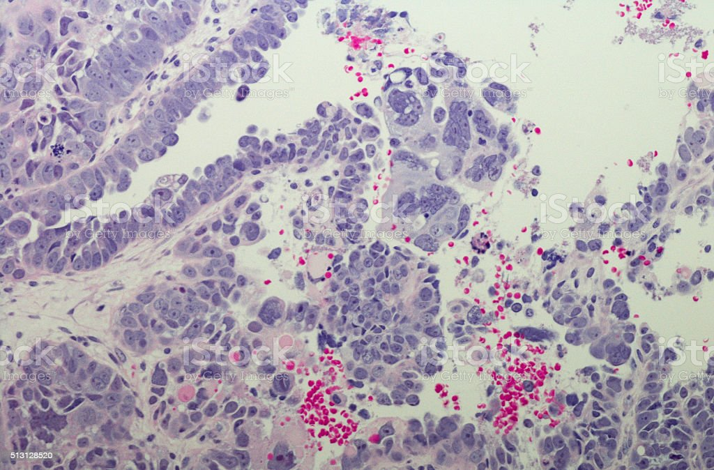 Serous papillary carcinoma of the endometrium  H&E stain stock photo