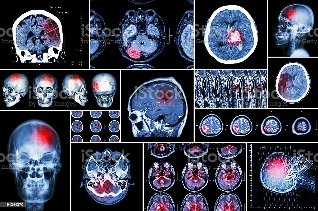 Set , Collection of brain disease stock photo