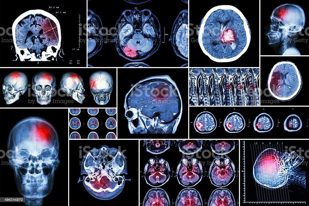 Set , Collection of brain disease stock photo