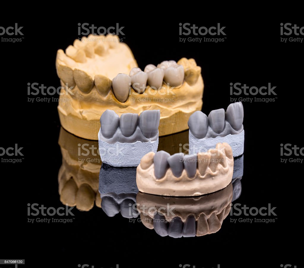 Set of dentures stock photo