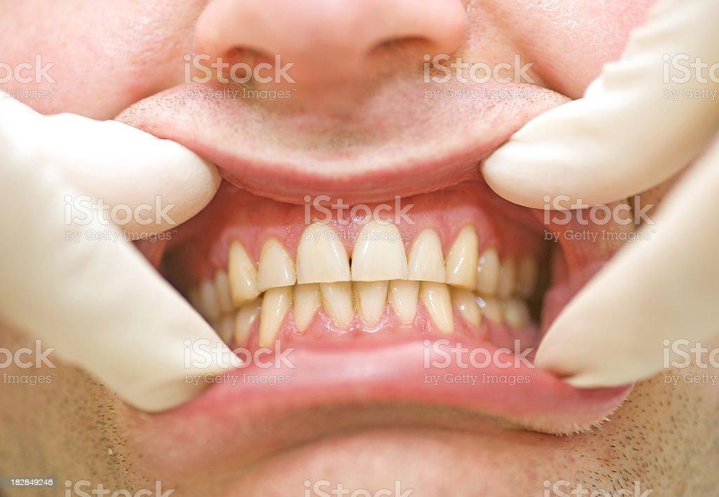 set of healthy human dentures at dentist stock photo