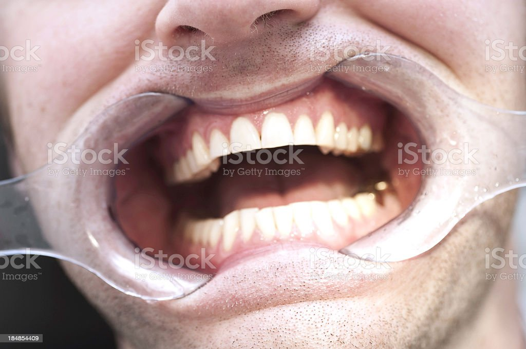 set of healthy human dentures with rebellion stock photo