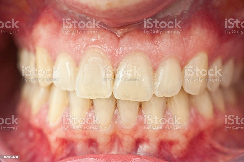 set of healthy human dentures - Zähne mit Zahnfleisch stock photo