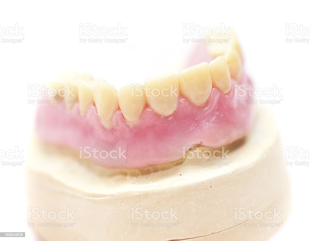 set of teeth dentures on gypsum - Dritte Zähne stock photo