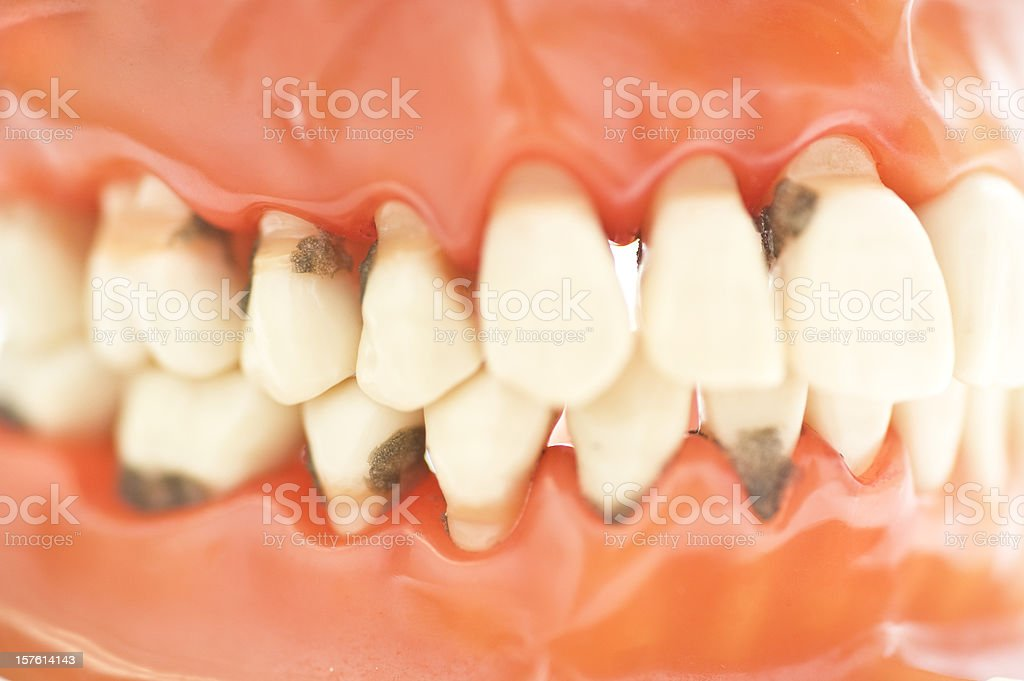 set of teeth with caries macro picture stock photo