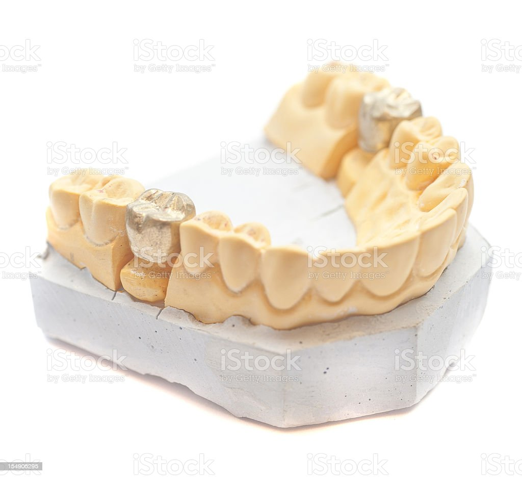 set of teeth with gold dental filling on gypsum stock photo