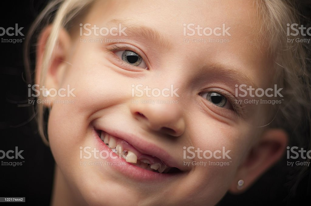Seven-year-old girl with loose tooth and one missing stock photo