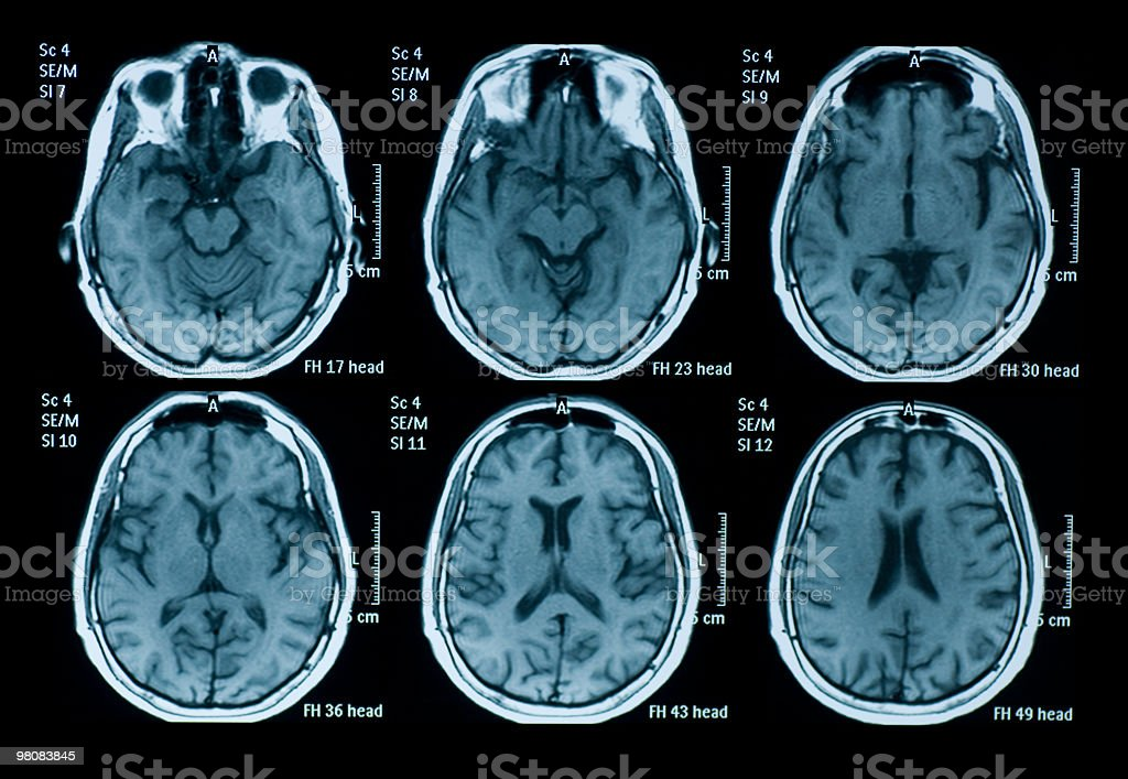 Several MRI images depicting a scan of the brain stock photo