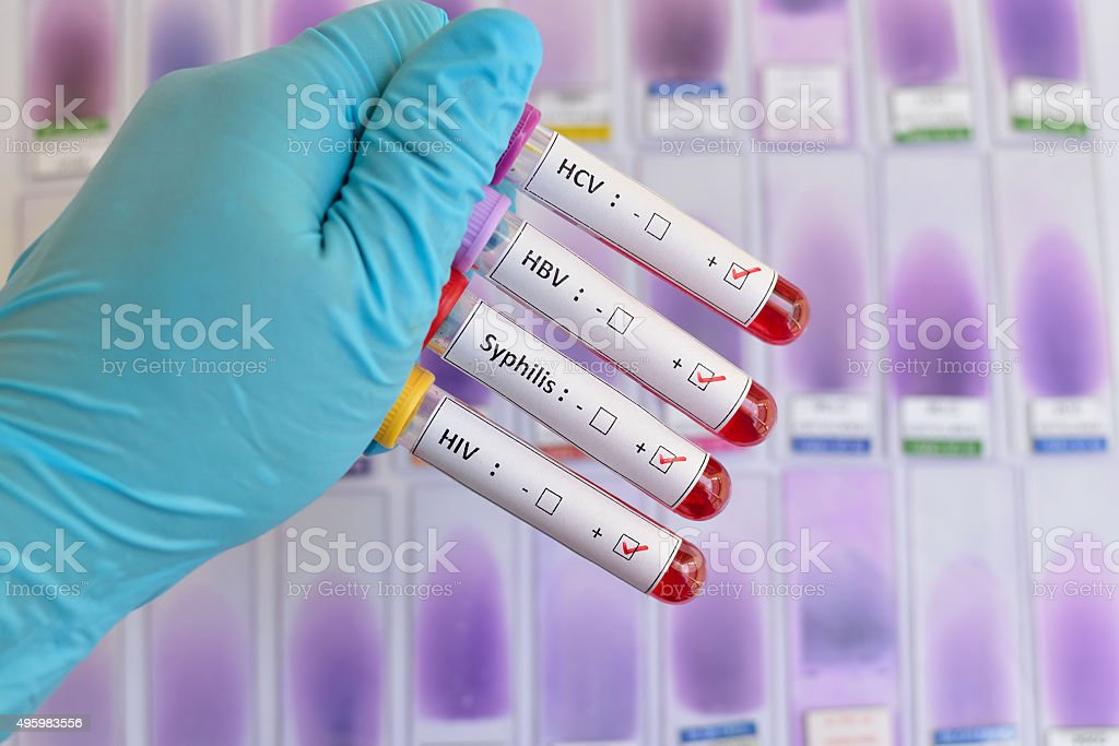 Sexually transmitted diseases: HIV, HBV, HCV, Syphilis stock photo