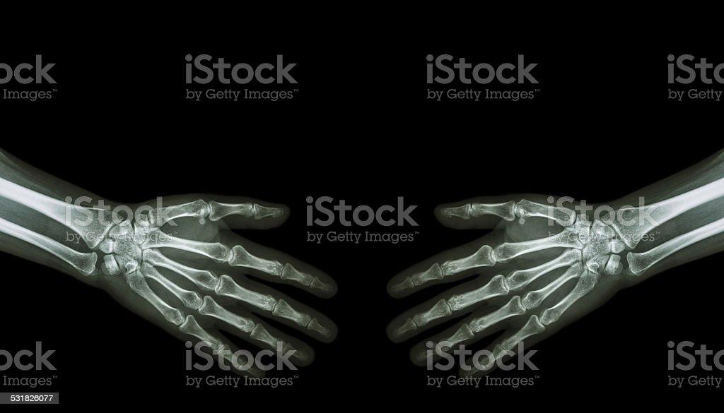 Shake hands .  X-ray normal human hands stock photo