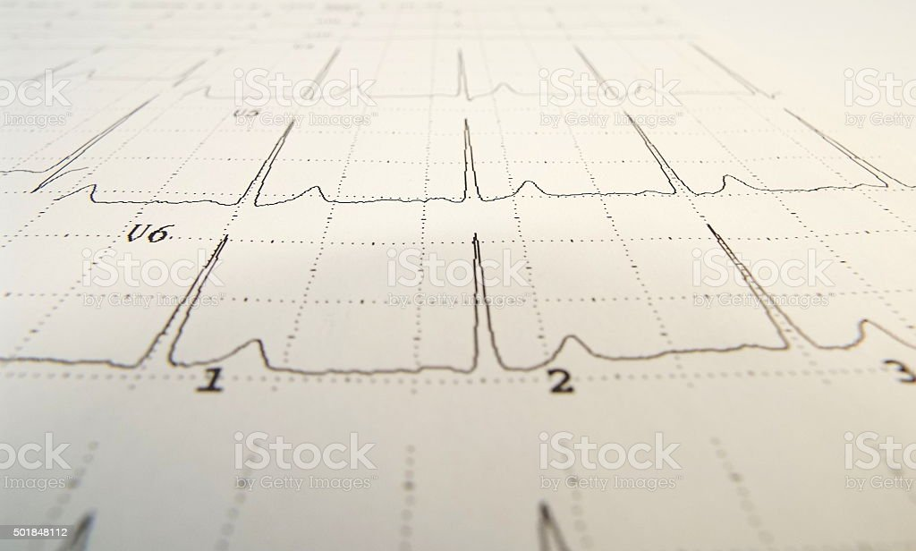 ECG sheet background in monochrome stock photo