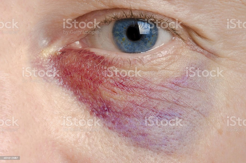 Shiner stock photo