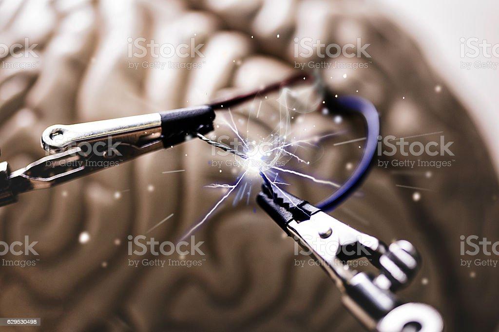 Shocked brain stock photo