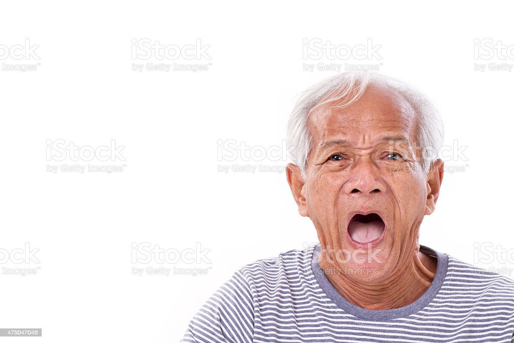 shocked, stunned, unhappy old man with surfer?€™s eye or pterygi stock photo