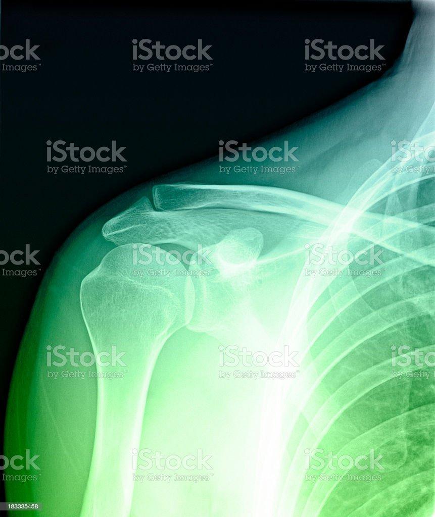 Shoulder anatomy royalty-free stock photo