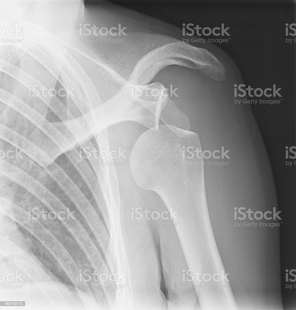 shoulder dislocation x-ray stock photo