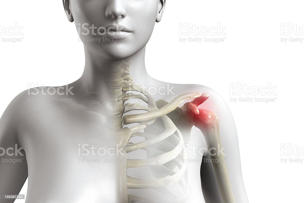 Shoulder impingement syndrome royalty-free stock photo