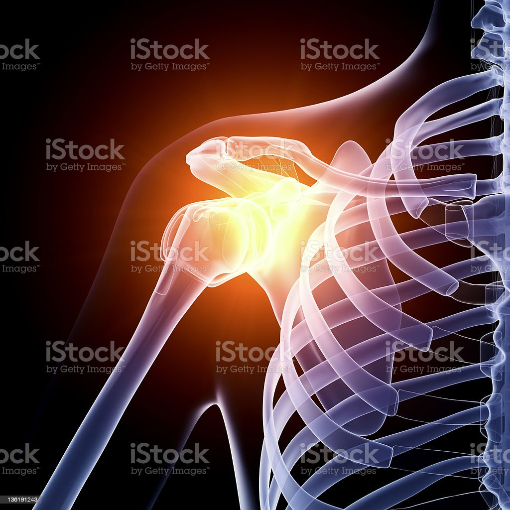 Shoulder in pain x-ray stock photo