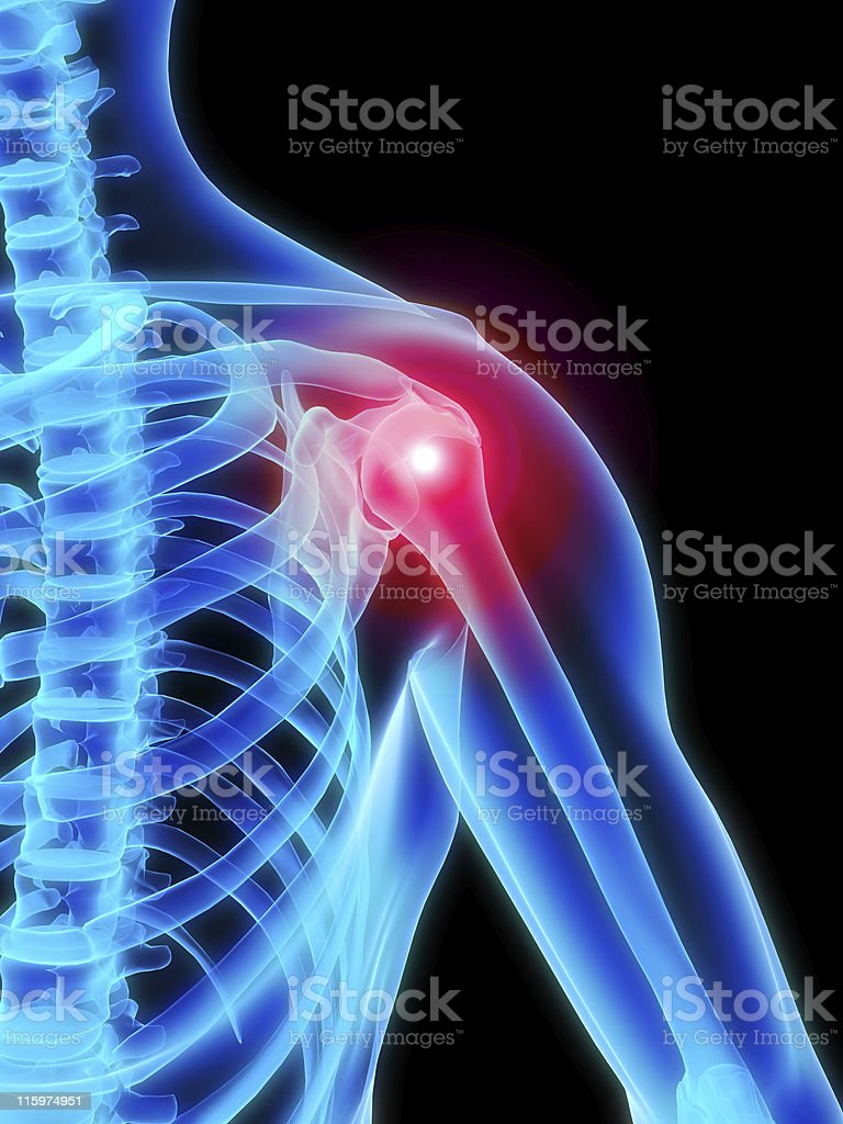 shoulder inflammation stock photo