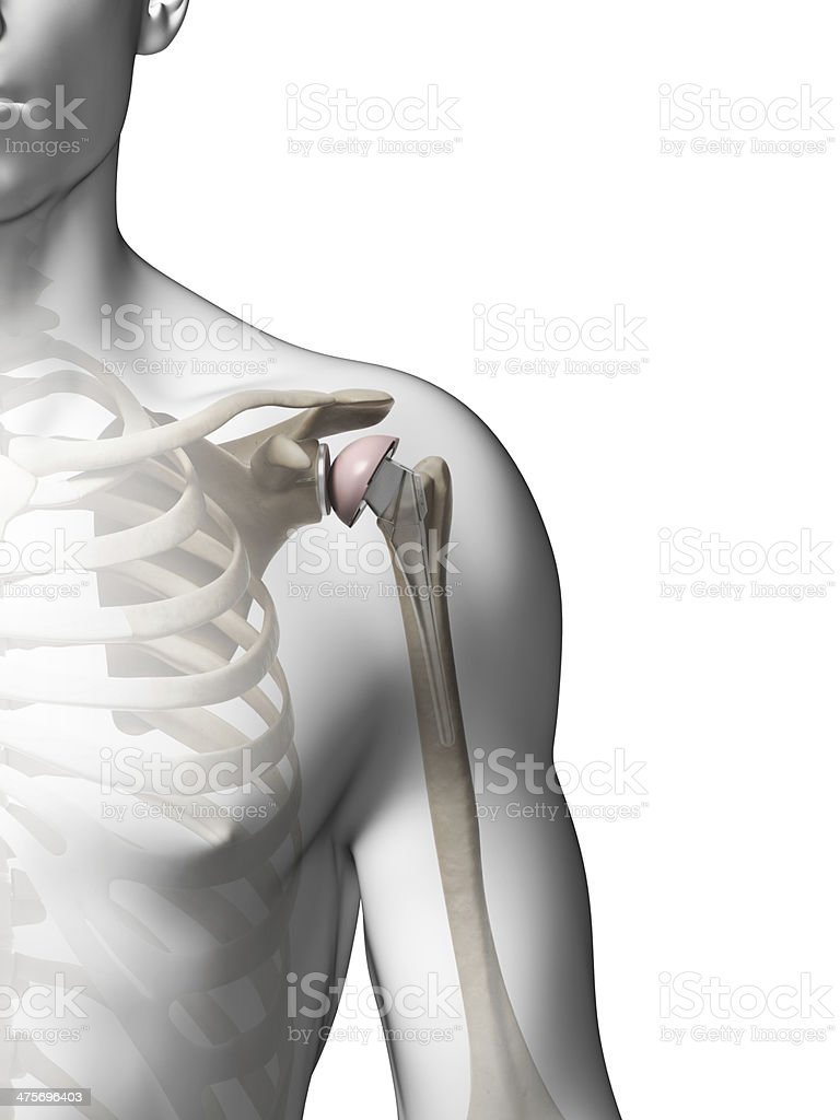 shoulder replacement stock photo
